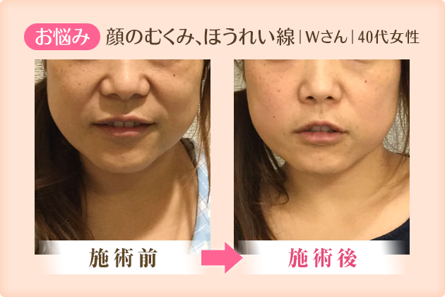顔のむくみ、ほうれい線|Wさん|40代女性