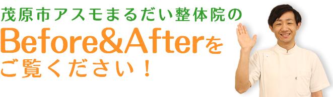 茂原市アスモまるだい整体院の猫背矯正Before&Afterをご覧ください!