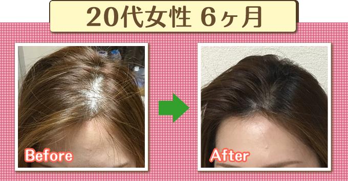 薄毛のビフォーアフター1