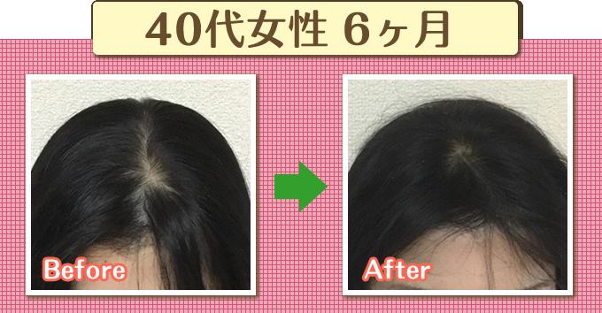 薄毛のビフォーアフター2